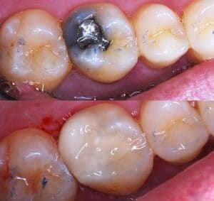 Before & After tooth