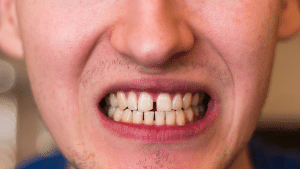 What Are The Options To Fix A Chipped Tooth?